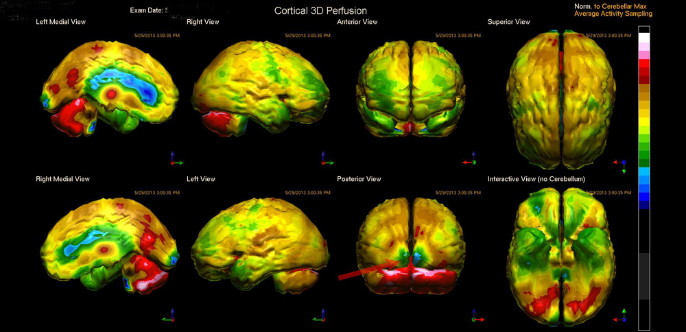 170925 Water Skiing CTE Brain Scan Cortical Perfusion
