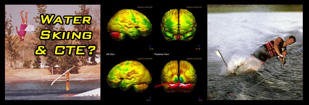170925 Water Ski Jumping Long Dive Brain Scan Slalom Crash CTE Encephalopathy